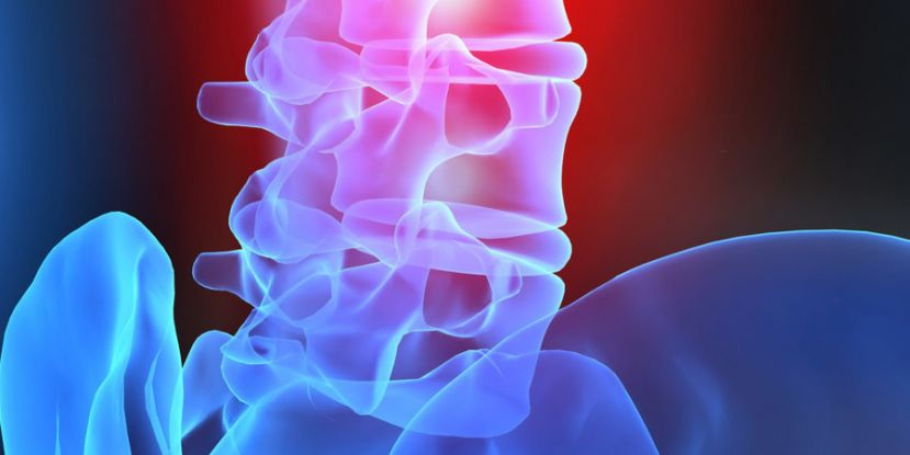 Study Identifies Risk Factors for Complications after Spine Surgery